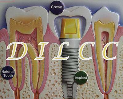 Dental Implant Laser Cosmetic Center Dentist Ahmedabad India